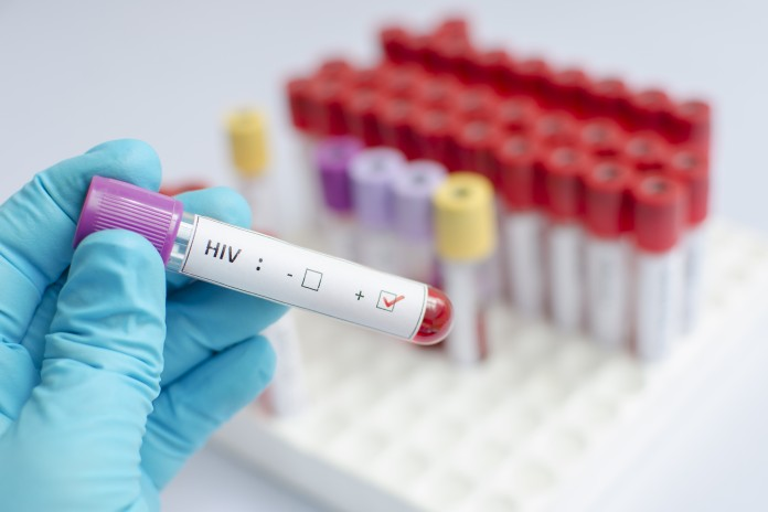 hiv and aids science report