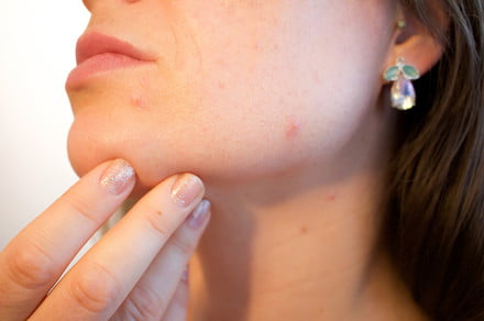 Bizarre laser treatment promises to zap away acne and skin disease