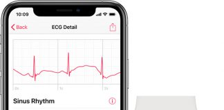 Apple Says watchOS 5.1.2 Coming Today With ECG App Enabled on Apple Watch Series 4