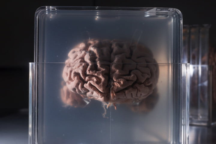 Scientists want to implant mini human brains in animals