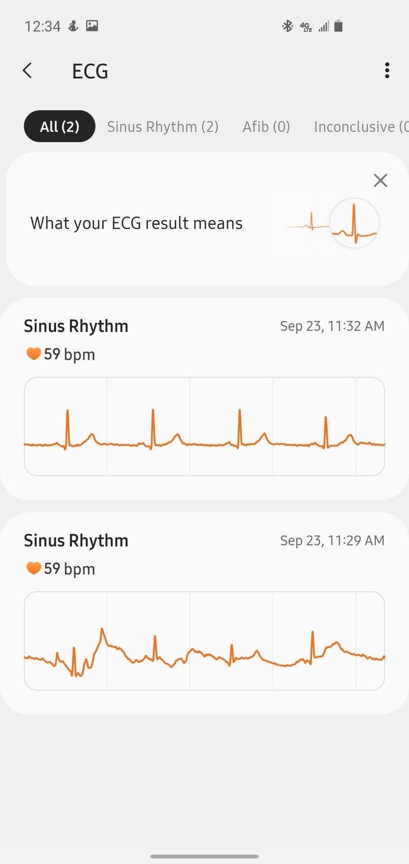 samsung-health-monitoring-ecg-1.jpg
