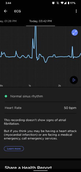 apple watch series 6 review withings scanwatch ecg readings
